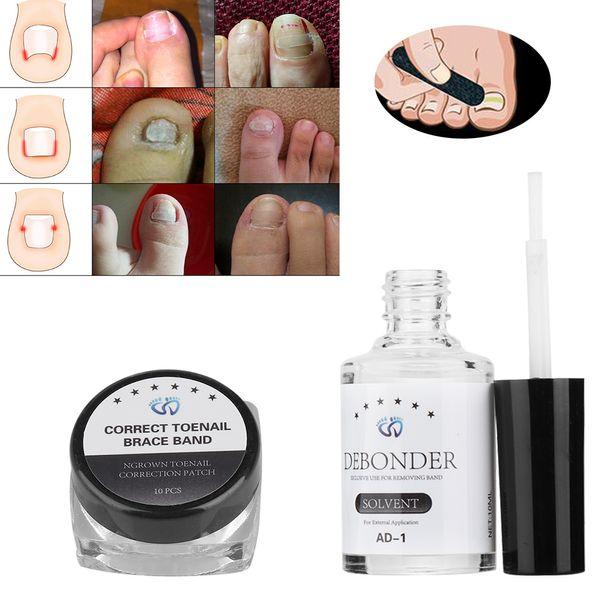 10pcs /set Toenail Correction Tool Set Ingrown Toe Nail Pedicure Elastic Patch Straightening Clip Brace with Glue Pedicure Tools