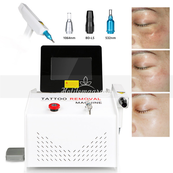 Professional CE Approval 1000MJ ND Yag Laser Birthmark Pigment Lipline Removal Red Target Light Q Switch Tattoo Removal Beauty Equipment