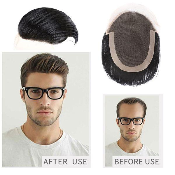 AiChen Toupee For Men Système de remplacement de la dentelle pour les hommes Tête de cheveux durable Système de remplacement de la dentelle pour les hommes Toupee