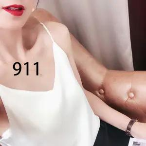 911 blanc
