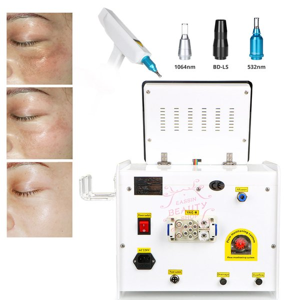 Brand New Laser Freckle Tattoo Removal Skin Mole Removal Dark Spot Tattoo Remover Laser Acne Treatment Skin Care