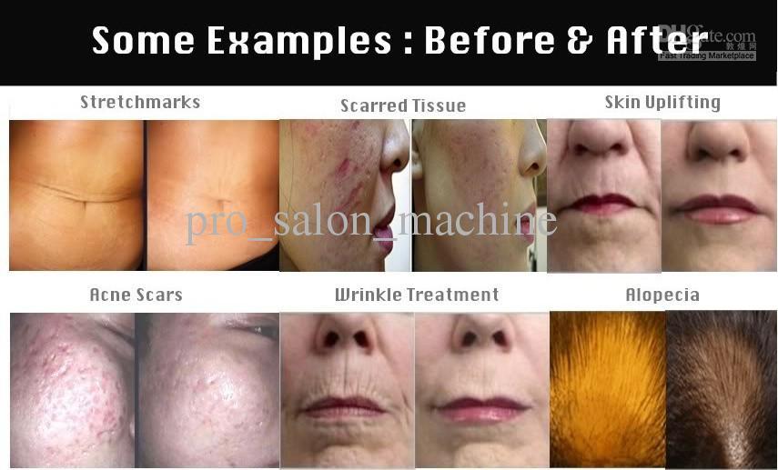 Laagste prijs Micro naald derma stempel roller voor kleine gebied littekens cellulite dermaroller schoonheidsverzorging