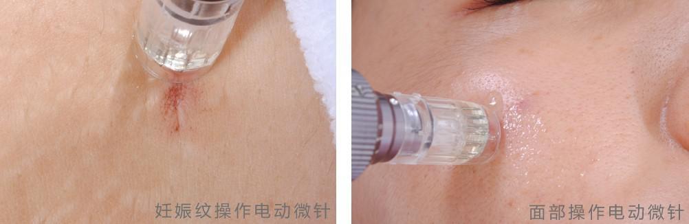 Con 52 cartucce di derma elettrico, penna derma MYM, rullo microneedle, bellezza anti invecchiamento