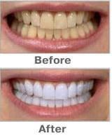 Teeth Whitening Pen Soft Brush Whiten Teeth Dental Care Products