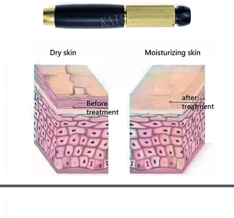 hyaluron pen detail (5)