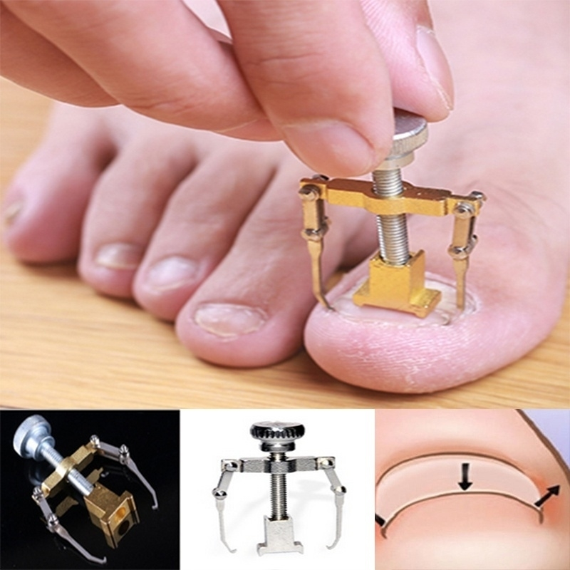 Useful Ingrown Toenail Toe Fixer Recover Correction Device Protector Tool Pedicure Foot Nail Care PSY (1)