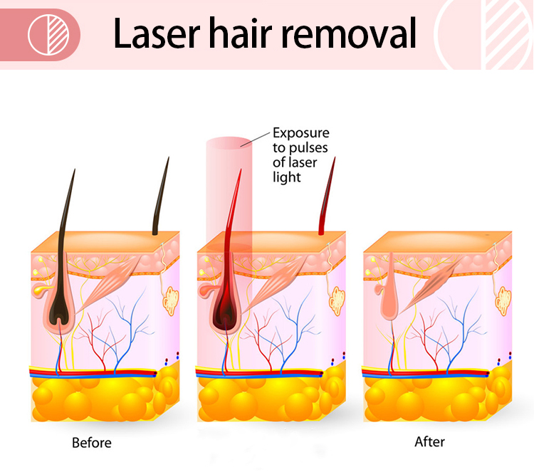 Guangzhou Renlang Electronic Technology Co., Ltd. 808nm Diode Laser Permanent Hair Removal Machine